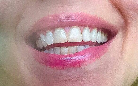 eli-smil-et-tannlege